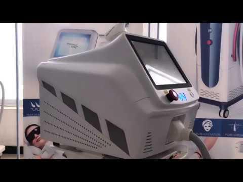 Гибридные лазеры для эпиляции 7
